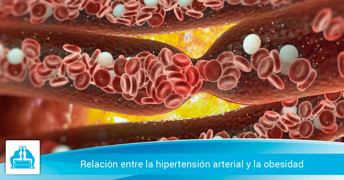 Relación entre la hipertensión arterial y la obesidad